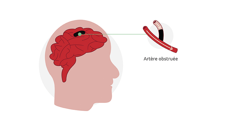 Un accident vasculaire cérébral se produit lorsqu'une artère ou une veine du cerveau est bloquée. Un blocage temporaire est appelé AIT.