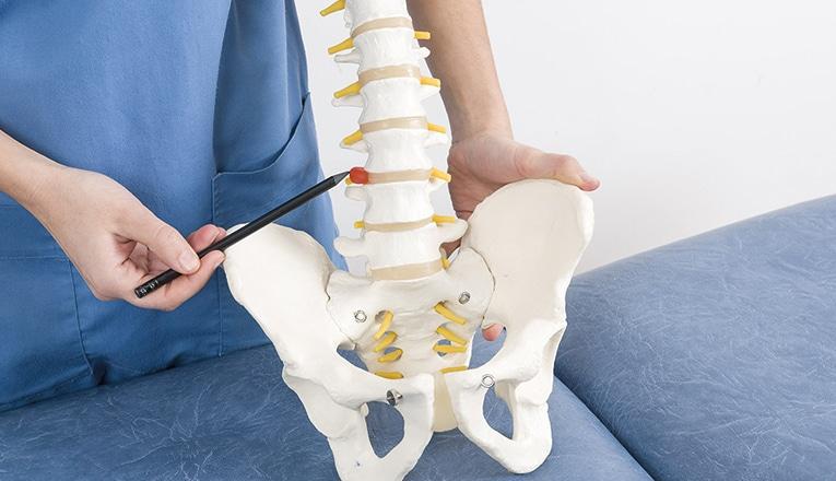 Le médecin identifie une hernie discale dans le dos de la vertèbre.