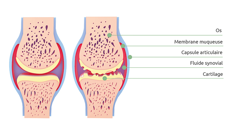 Une image schématique d'un genou souffrant d'arthrose et d'un genou sain