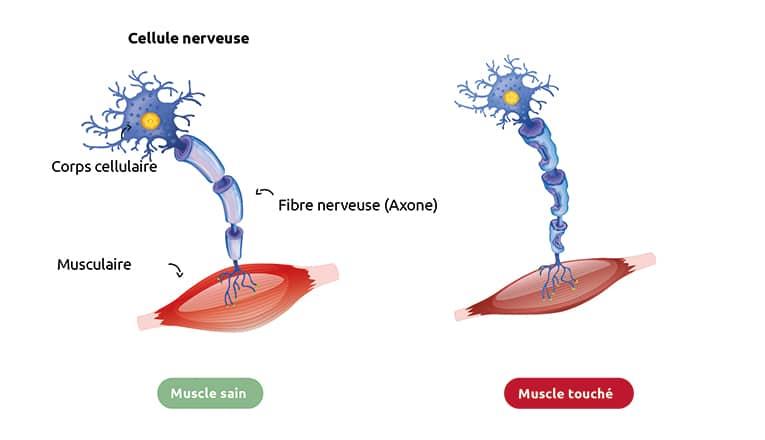 Représentation schématique d'un muscle atteint de SLA et d'un muscle sain.